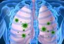 maladies des poumons, pneumonie, les signes de la pneumonie, symptômes de la pneumonie, traitement de la pneumonie, tout sur la pneumonie