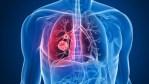 Plus de 6,3 millions de personnes pourraient contracter la tuberculose en raison de la pandémie de coronavirus