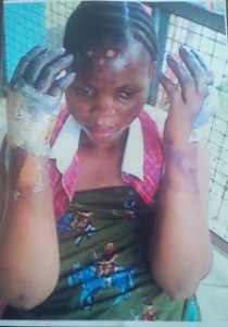 Man jailed 5 years for setting pregnant lover on fire