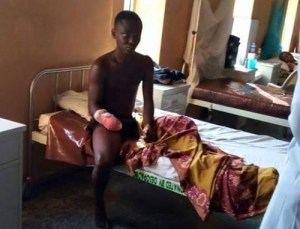 Teen boy has his hand chopped off while trying to steal a phone in Sapele (Graphic Photos)