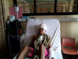NYSC member who survived a horrific accident share before and after photos (Graphic)