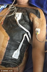 Woman survives ordeal after flesh eating bacteria consumes her flesh