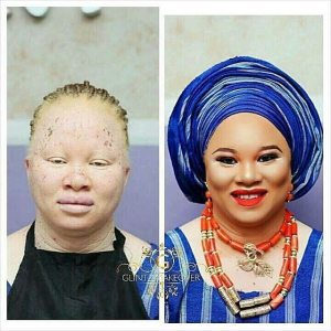 This Albino Lady's Makeup Transformation Photo Will Leave You Speechless