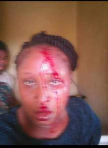 Man beats his wife, accuses her of cheating (Disturbing Pics)