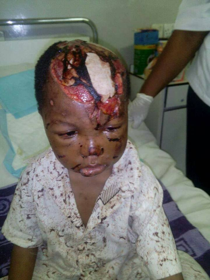 , Boy Survives After Being Mauled By 2 Dogs Who Opened His Head. (Graphic Photos), Effiezy - Top Nigerian News & Entertainment Website