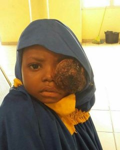 Young girl with eye cancer needs our help (Photo…. See details)