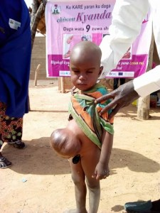 Boy with abdomen problem seen in Gombe State (Photos)
