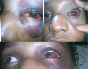 Nigerian Lady, Amarachi Azubuike Narrates How She Was Robbed & Almost Raped By An Okada In Lagos (Photos)