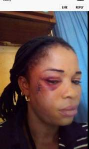 Man And His 2 Sisters Beat His Wife Mercilessly In Delta State, Send Her Out
