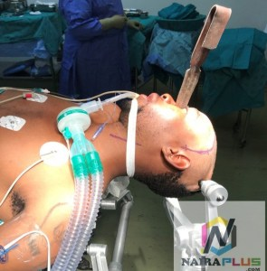 , South African Man Stabbed In The Eye & Brain Gets His Sight Restored (Graphic Photo), Effiezy - Top Nigerian News & Entertainment Website
