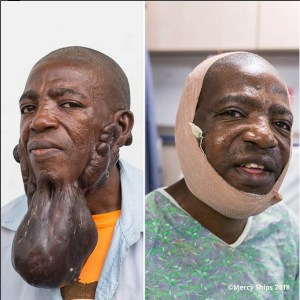 Check out the huge tumor removed from this man's face after 15 years (Photos)