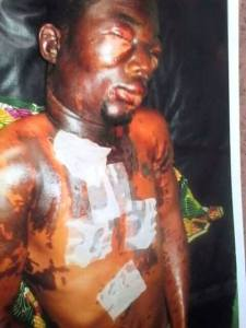 Anambra Married Man, Chinedu Anagor Attacks His Niece And Her Lover With Acid (Photos)