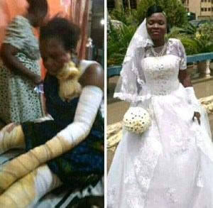 Acid Poured On A Lady 24 Hours After Her Wedding, Husband Abandons Her (Photos)