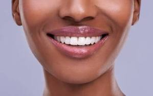 Check Out 3 Natural Steps To Whiten Your Teeth