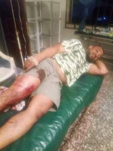 Assassins Shoot Governor Udom's Former Aide Who Resigned And Joined Akpabio In APC (Photos)