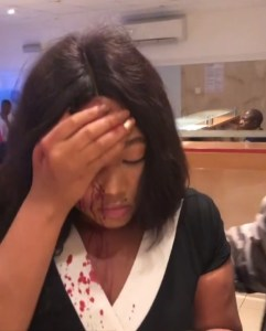 Lady Beaten And Robbed By Taxify Driver In Lagos (Photos)