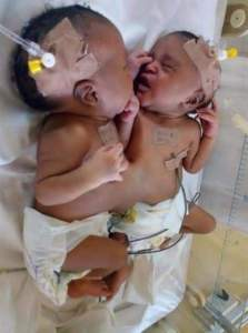 Doctors Separate Conjoined Twins At Abuja Hospital (Photos)