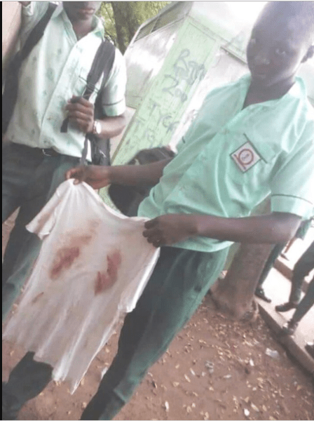 , 15-Yr-Old Student Left Seriously Injured By Soldiers For Not Wearing His Complete School Uniform (Photos), Effiezy - Top Nigerian News & Entertainment Website