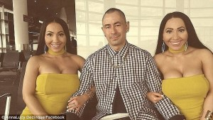 Identical twin sisters who share the same boyfriend just had $250K surgery