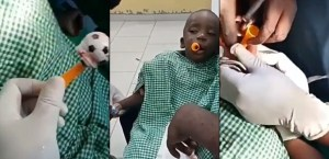 Moments Doctors Surgically Remove Toy That Got Stuck In Boy's Throat In Ibadan. (Photos)