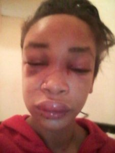 Lady beaten by boyfriend and his friends for not giving him money (Photo)