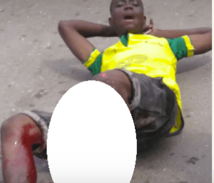 Man begs God to take his life as his leg is crushed in an accident (Graphic photos)