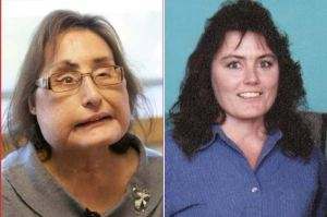 First U.S recipient of partial face transplant dies at 57