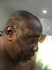 Air Commodore Johnson critically injured by hoodlums while jogging