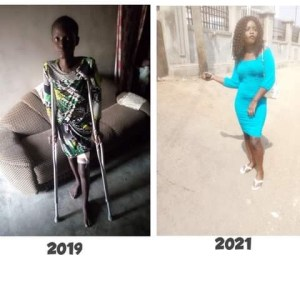 How my mum cared for me for six months after being abandoned by lover and friends over illness – Nigerian lady shares her survival story (Photos)