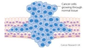 Rákgyógyítás és a ganoderma