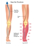 Know Your DVT (Deep Venous Thrombosis) Risks & What To Look Out For