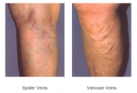 Free Vein Screening Offered For The Month Of September!
