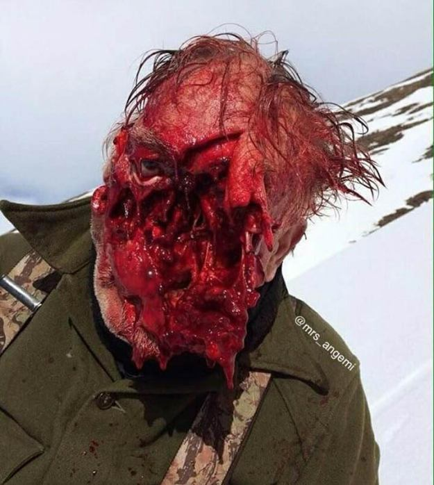 closeup of Wes Perkins face after Grizzly attack loosing his face