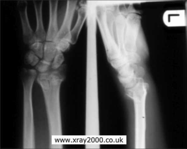 Перелом лучевой кости фото – Перелом лучевой кости: виды и ...