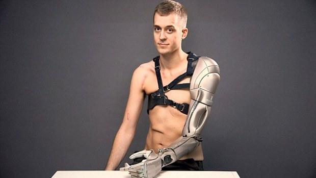 brațul bionic (1)