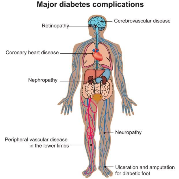 complicațiile diabetului