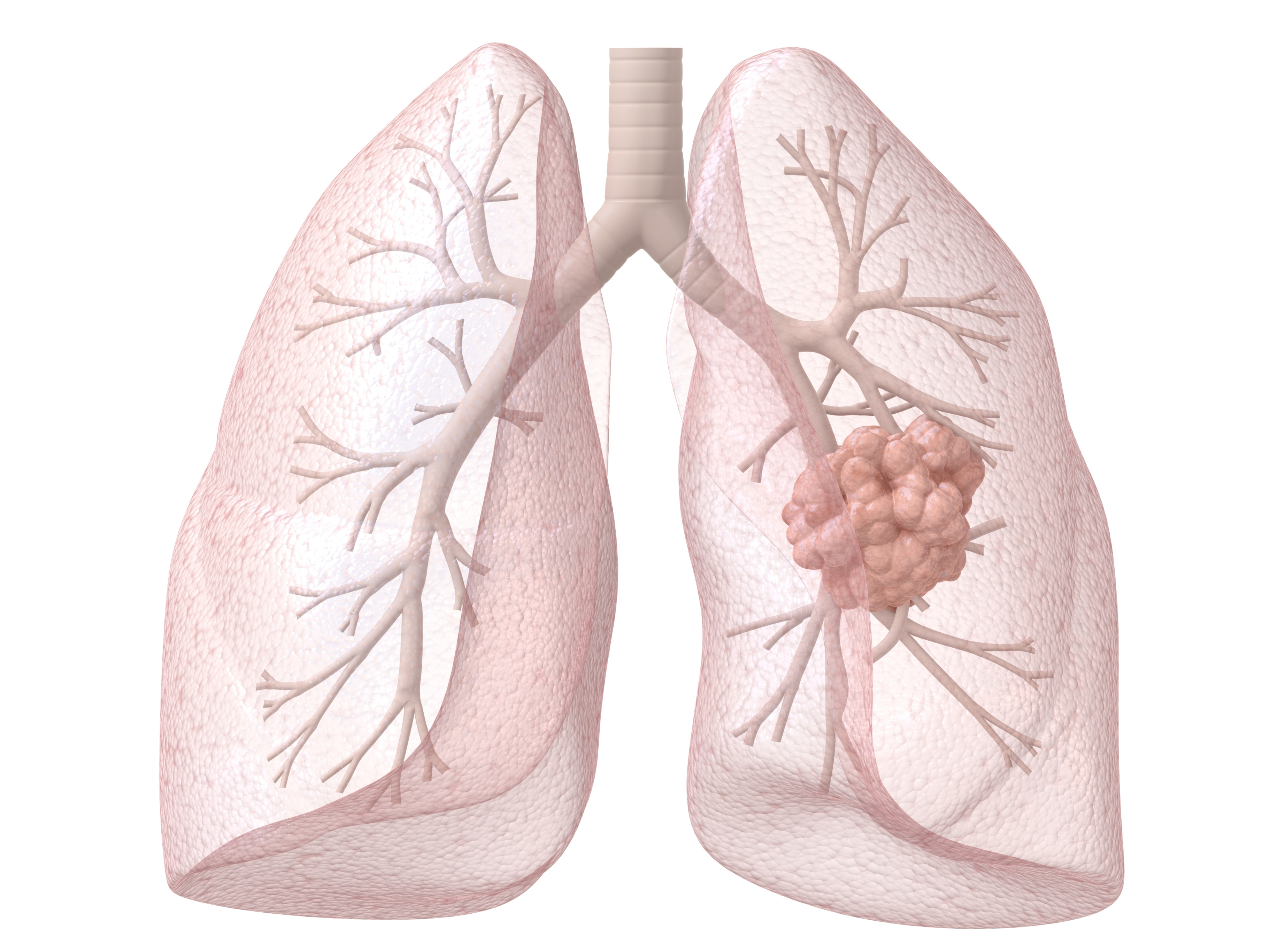 Lung Cancer S Deadly Secret