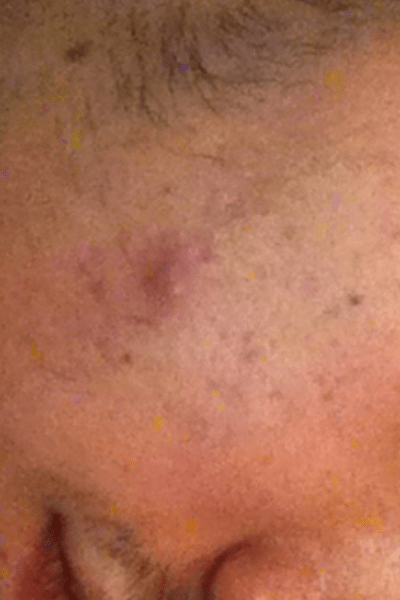 Blackheads Cysts Abscess Boils Removal
