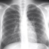 【マイコプラズマ肺炎】重篤な喘息を併発する恐れも・・・症状と治療法