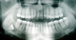 Listado básico de términos odontológicos