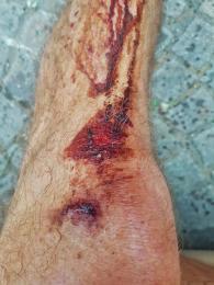 Lavaredo Ultra Trail 2017 (59)