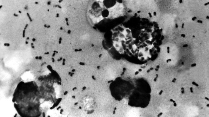 Chinese city issues an alert after confirming a suspected case of Bubonic Plague, a rare but serious bacterial infection