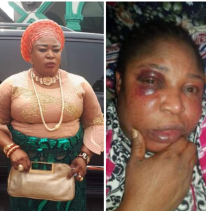 Ex-Delta Council Chairman Allegedly Beaten Black and Blue By A Woman Finally Breaks Silence