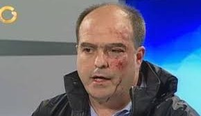 Venezuela: Vuelven a agredir brutalmente a diputados opositores