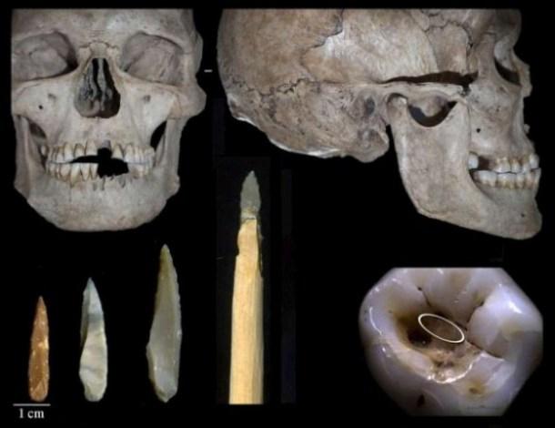 Dentistas Prehistóricos