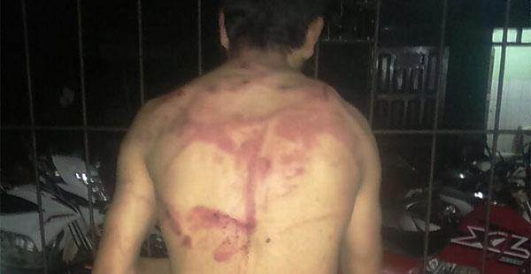 Pobladores de Yapacaní detuvieron a un ladrón de motocicletas y le propinaron una golpiza. En Okinawa los cacos robaron en una moto