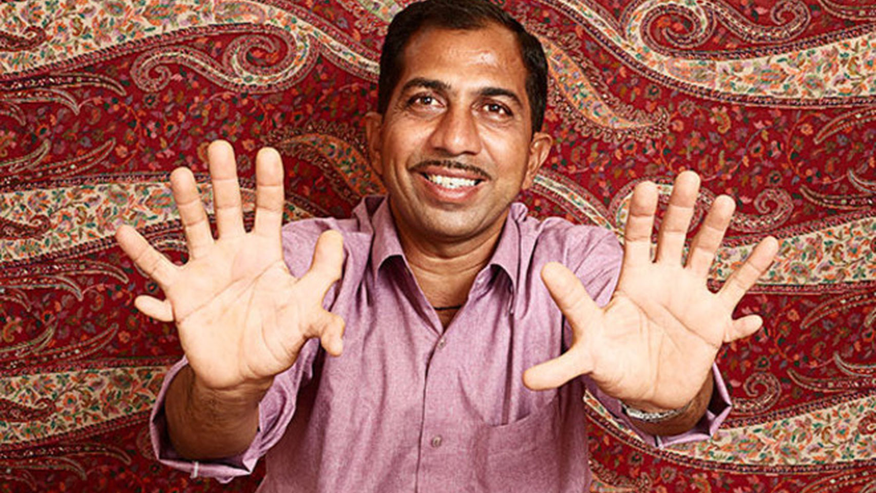 La persona con más dedos