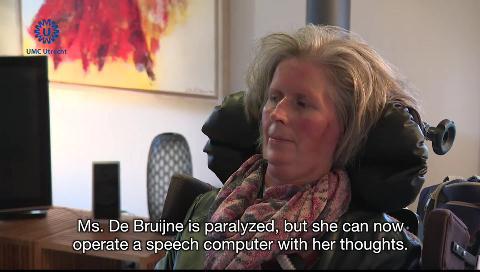 Esta mujer paralizada puede comunicarse gracias a un implante