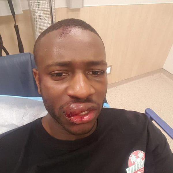 Jugador del Manchester City agredió a un joven en pelea callejera