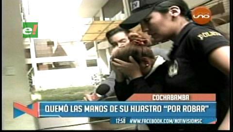 Mujer quemó las manos de su hijastro por robar dinero de su bolso